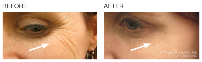lavelle crows feet treatment before after