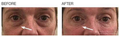 EyeRise Under Eye Fillers NYC   Before After Photos, Pricing