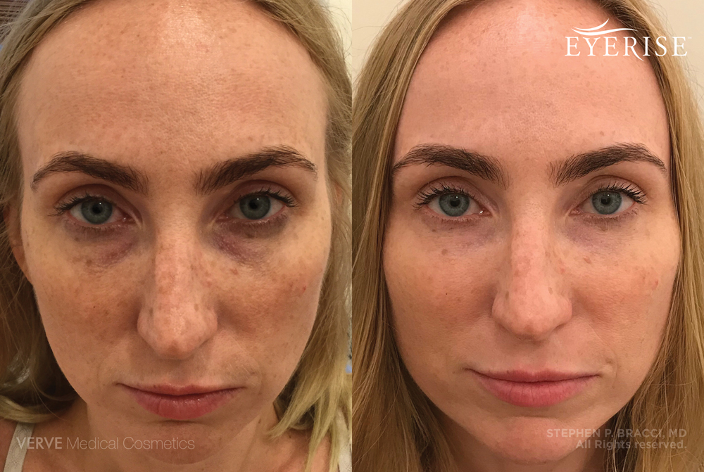 Under Eye Filler Treaments in NYC | Verve Medical Cosmetics