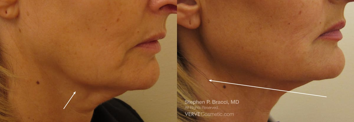 JAWLINE-Patient-AA-B&A